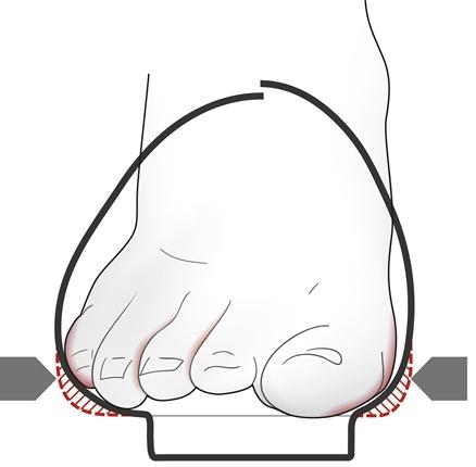 Afbeelding van voet die slecht in schoen zit